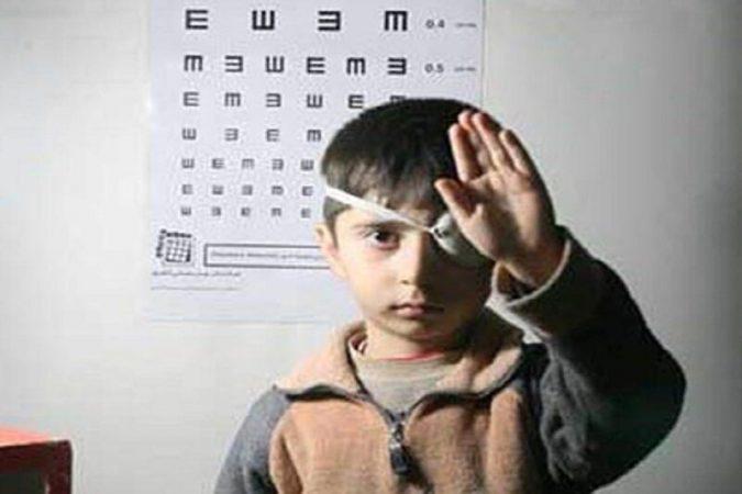 طرح پیشگیری از تنبلی چشم در ۶۰۹ پایگاه در خوزستان ادامه دارد