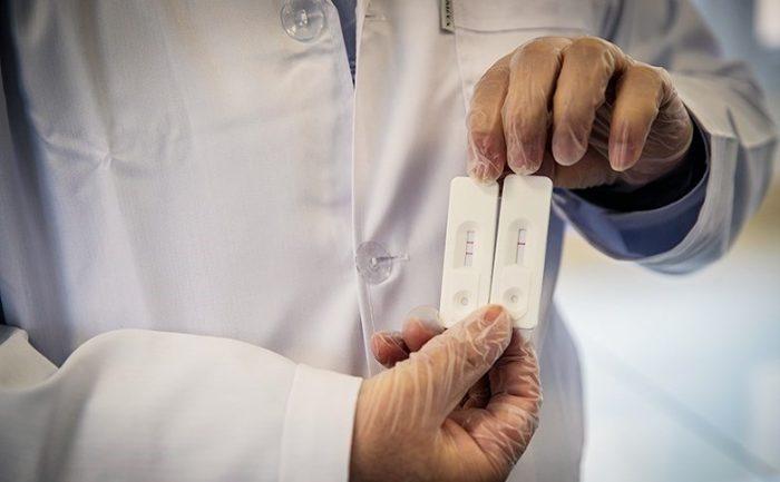 احتمال کاذب بودن تستهای منفی کرونا ۳۵ درصد است